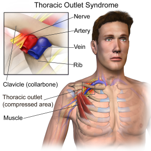 Thoracic Outlet Syndrome Illustrated Diagram